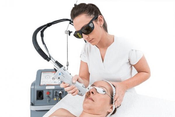 Эффективная лазерная эпиляция